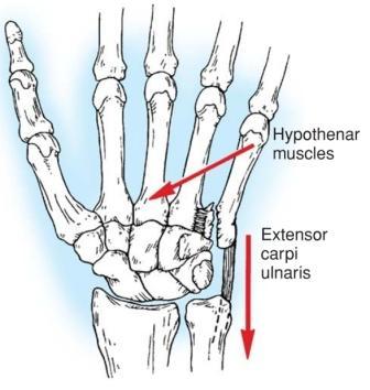 смещение сустава кисти руки лечение