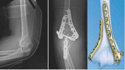 пластины при переломе плечевого сустава